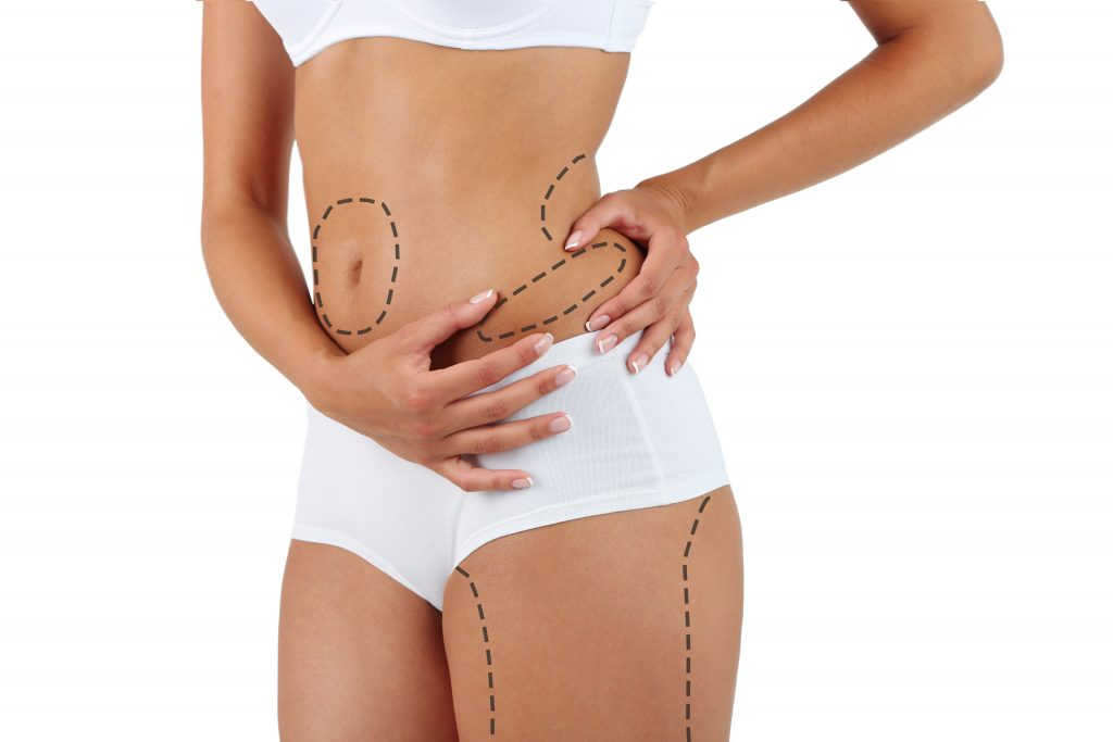 is liposuction worth it