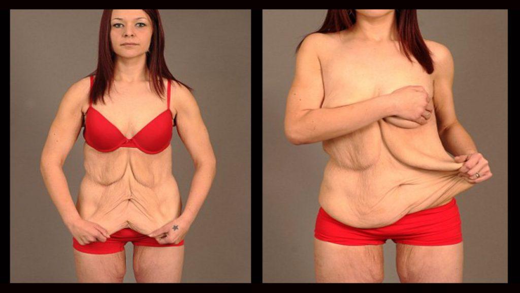 is liposuction worth it