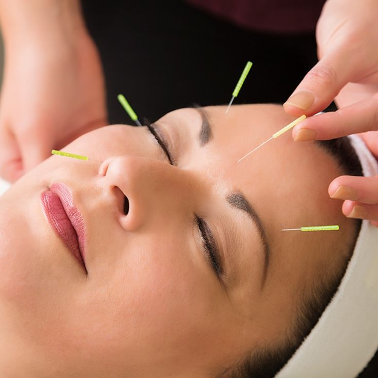 alternative therapies treat migraines
