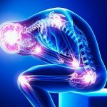 natural alternatives pain medication