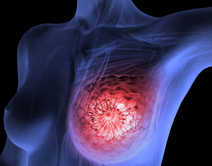 breast cancer inherited